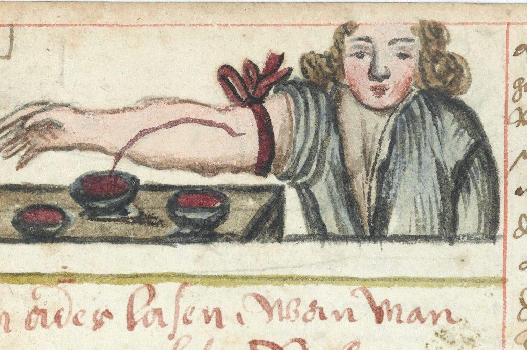 Medieval image of man being bled medicinally
